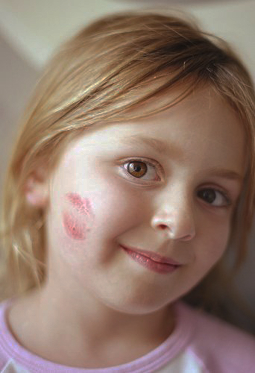 [Photo of a young girl with a lipstick kiss on her cheek]